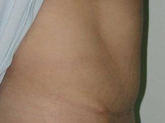 Après Après 3 mois:<br>cicatrice en T inversé<br>encore inflammatoire