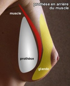 schema_prothèses_mammaire_en_arriere_du_muscle-242x300
