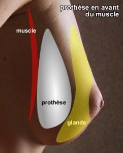schema_prothèses_mammaire_en_avant_du_muscle-242x300