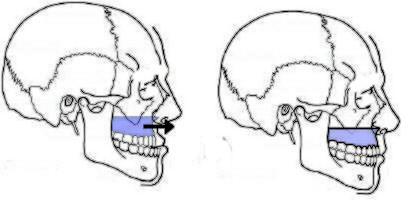 avancee-maxillaire