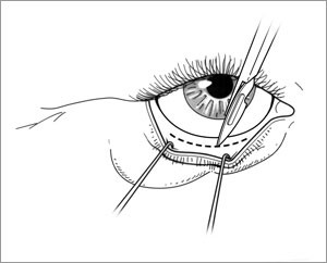 blepharoplastie_jacques_lalo_2