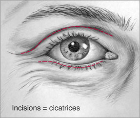 blepharoplastie_jacques_lalo_3