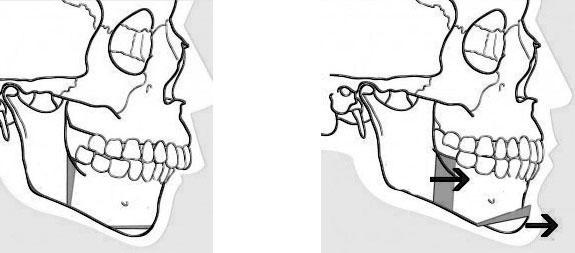 Exemple d'avancée mandibulaire avec génioplastie