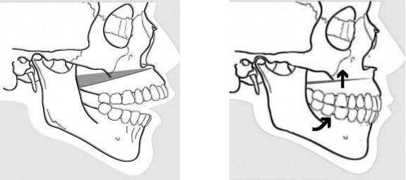 Exemple d'ostéotomie de Le Fort 1 avec impaction du maxillaire