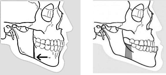 Exemple d'ostéotomie mandibulaire de recul