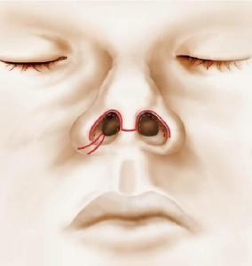 Schémas de l'anatomie du nez et des voies d'abord
