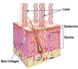 shema_laser_demabrasion_dr_jacques_lalo